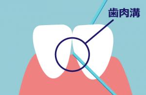 デンタルフロス 歯肉溝 汚れが溜まる部分