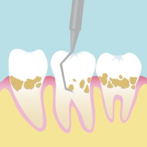 歯周病_症状_スケーリング