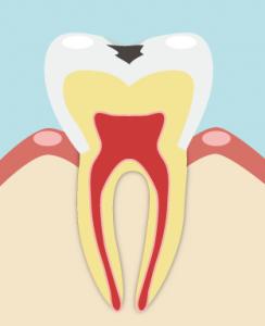 進行した虫歯