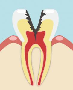 進行度C3(神経まで進行)の虫歯