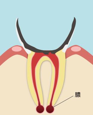ひどい虫歯の状態