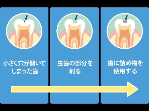 C1 初期の虫歯レベルの治療法