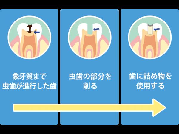 レベル「C2」の虫歯治療の流れ