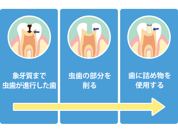 C2 象牙質まで達した虫歯の治療法