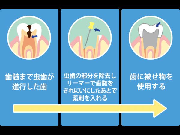 虫歯が歯髄まで進行した場合の治療法