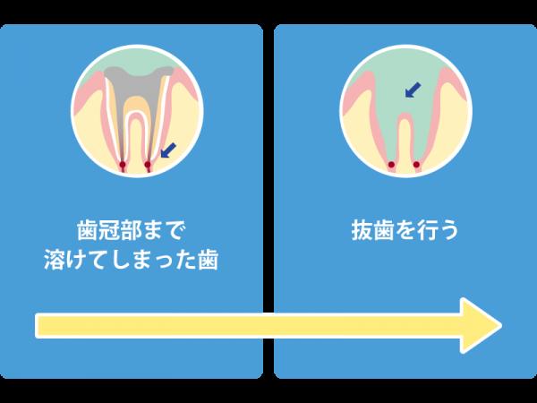 C4 歯冠部まで溶けた虫歯の治療