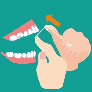 デンタルフロスの上の歯への入れ方