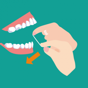 デンタルフロスの下の歯への入れ方