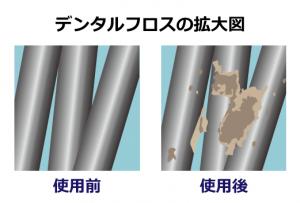 デンタルフロス 汚れの付き方