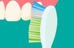正しい前歯の磨き方