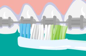 電動歯ブラシ 矯正治療を行っている場合の磨き方