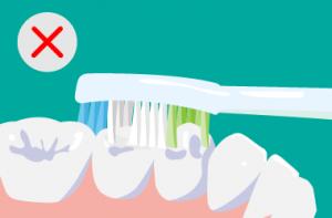 電動歯ブラシ 磨き方の悪い例