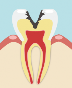 進行度の高い虫歯