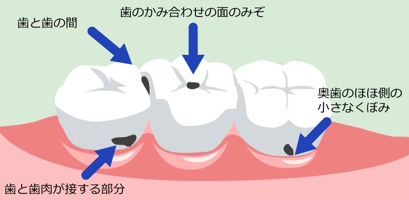 虫歯の出来やすい箇所