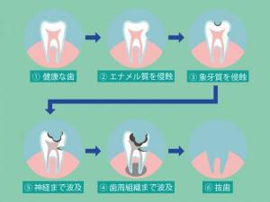歯痛の進行手順