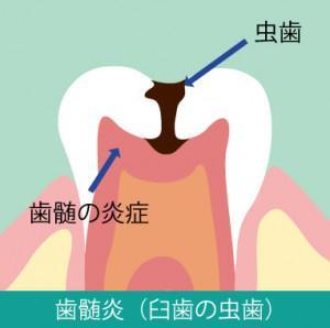 歯の根っこの病気 応急処置