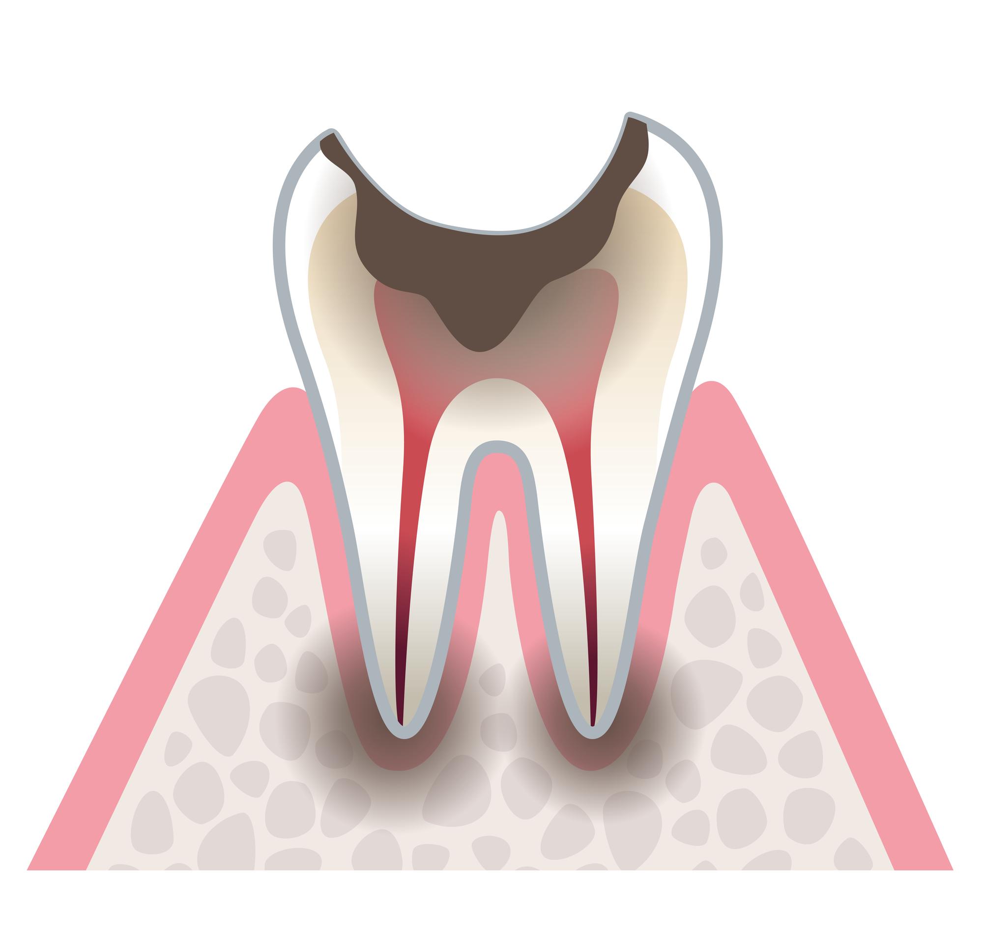 歯根まで進行した虫歯のイラスト