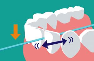 デンタルフロスを歯間部に入れ小さく動かす