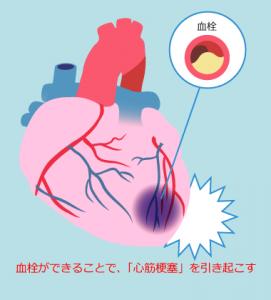 歯周病が原因で「動脈硬化」が促進