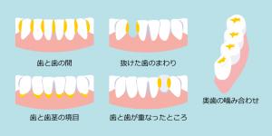 歯垢が溜まりやすい場所