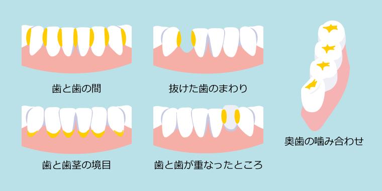 歯垢のたまりやすい部分