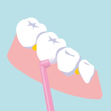 歯間ブラシで歯石を取り除く