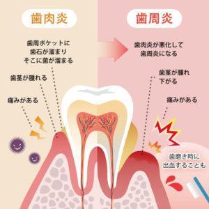 歯肉炎・歯周炎イラスト