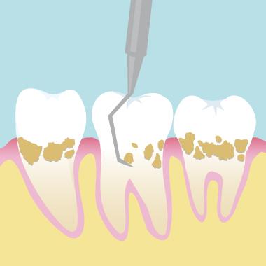 歯周ポケット内の歯石を取り除く