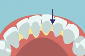 歯石が付きやすい下顎の前歯の裏側