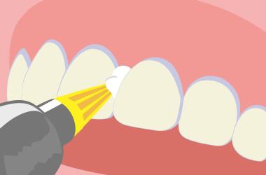 「PMTC」の主な流れ ラバーチップで歯間を磨く