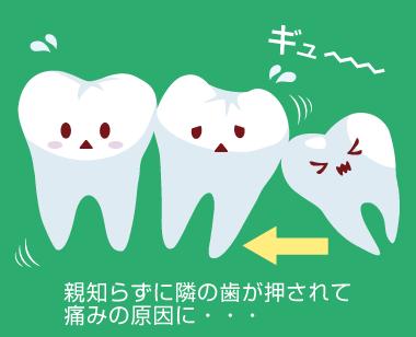 親知らずが隣の歯を押す