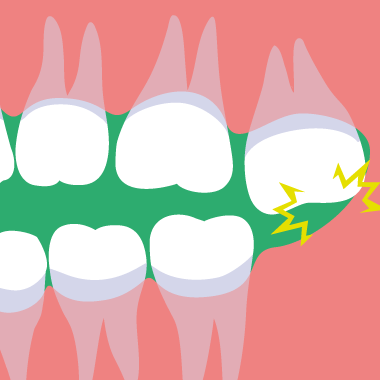 親知らずが生えて歯茎に触る