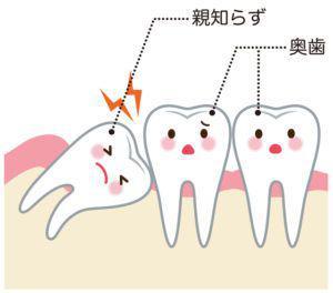 親知らず_虫歯で斜めのイメージ