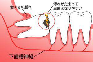 親知らず_虫歯の半埋伏