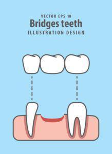 親知らず_虫歯のブリッジ