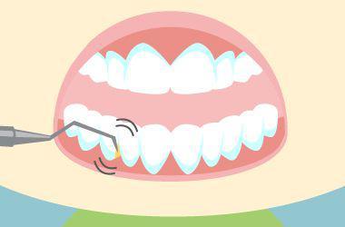 自分で行う歯石除去の手順4