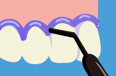 オフィスホワイトニングの流れ 歯肉の保護