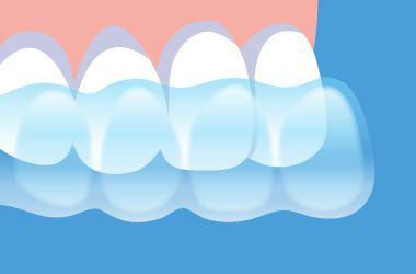 ホームホワイトニングの流れ マウスピースを歯に装着