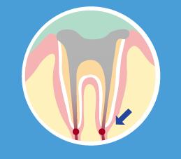 虫歯レベルC4