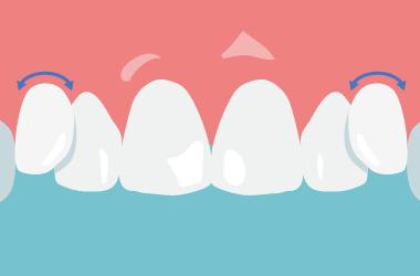 軟らかめのブラシで歯と歯茎の境目をなぞる