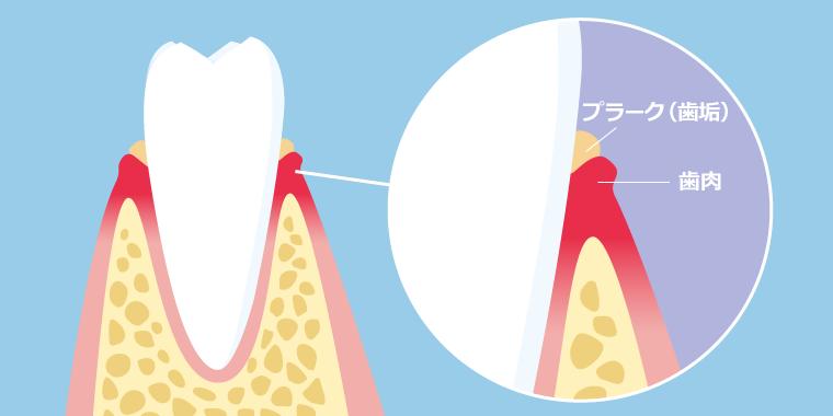 歯肉炎になってしまう原因