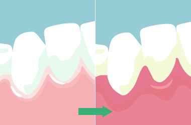 歯肉炎による変色