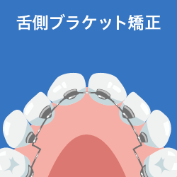 舌側ブラケット矯正