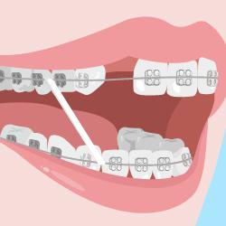 抜歯矯正のイラスト