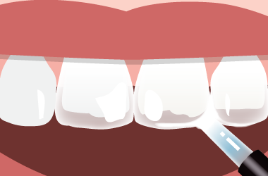 歯が透ける症状