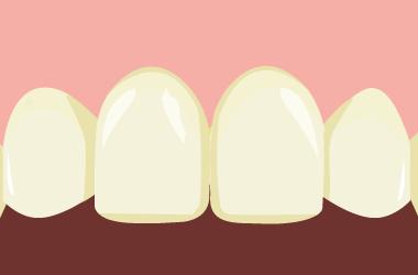 酸蝕歯の初期状態