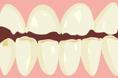 中期以降の酸蝕歯