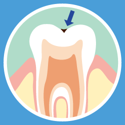 虫歯の画像②