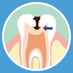 虫歯の画像③