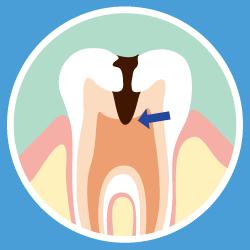 虫歯の画像④